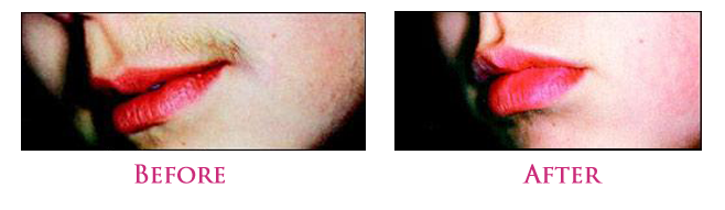 Unwanted Hair Removal, Hair Removal Solution
